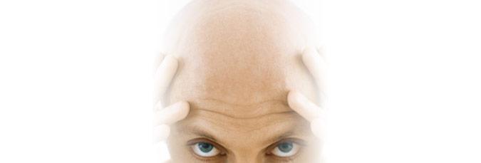 Slik barberer du deg skallet på den enkle måten